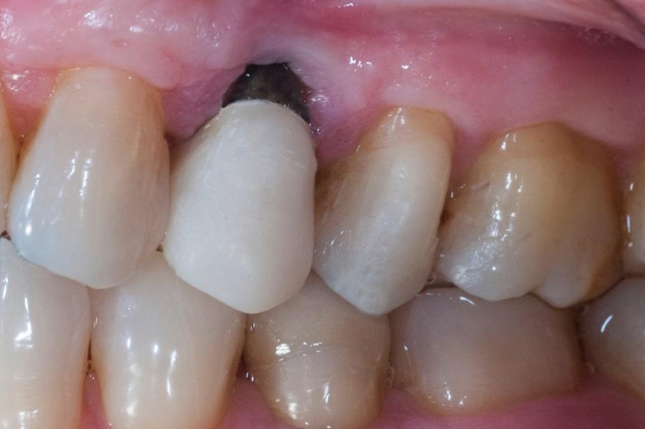 martwy, przebarwiony ząb