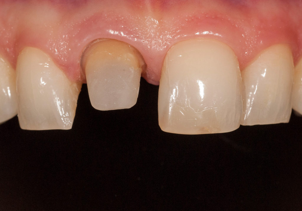 ząb przygotowany pod koronę ceramiczną