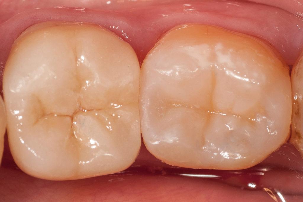 nakład zacementowany w ustach pacjenta