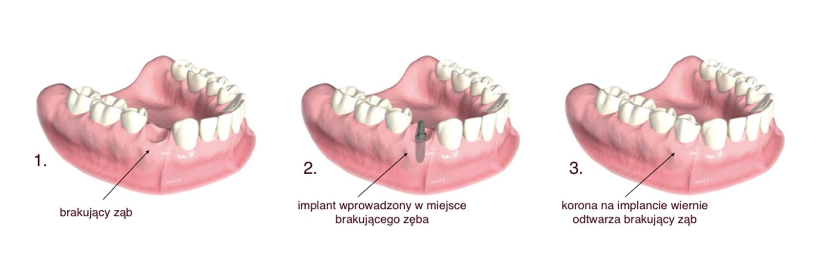 implant wprowadzony w miejsce brakującego zęba