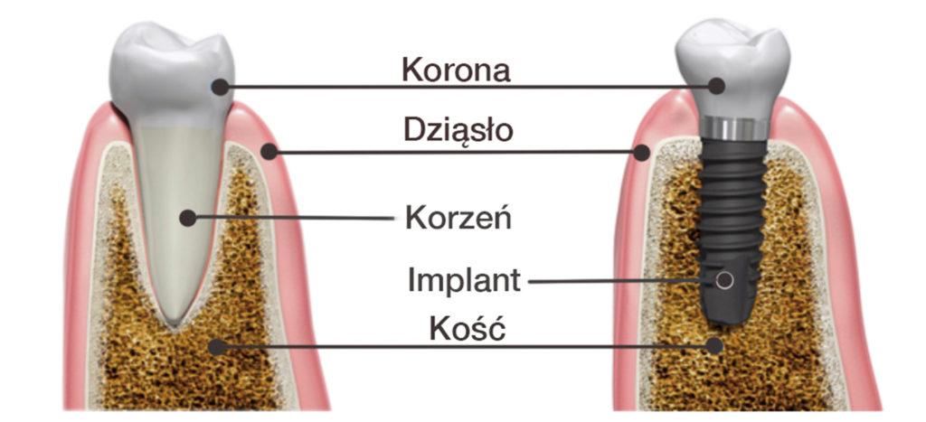 budowa implantu zęba
